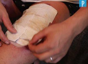 Vapotage: un vapoteur brûlé par une explosion de batterie porte plainte contre un magasin
